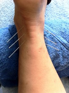 Sports podiatrist treating a patient's foot with acupuncture