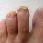 A patient with a fungal toe nail problem