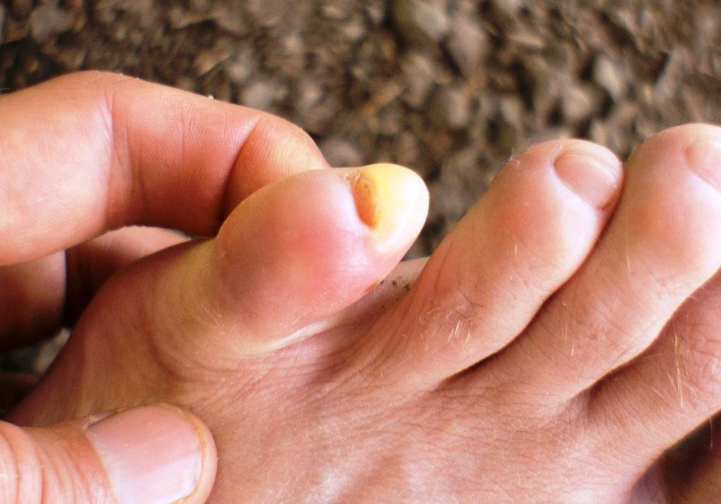 Sports podiatrist examining a patient with a blister