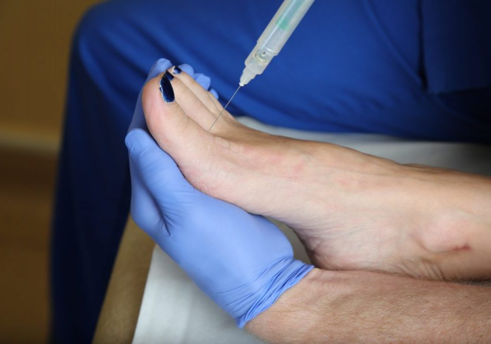 Podiatrist preparing a patient's foot for nail surgery